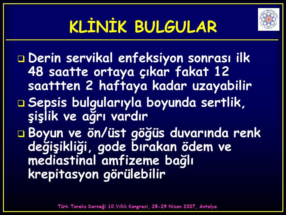 Türk Toraks Derneği 10.Yıllık Kongresi, 25-29 Nisan 2007, Antalya KLİNİK BULGULAR  Derin servikal enfeksiyon sonrası ilk 48 saatte ortaya çıkar fakat 12 saattten 2 haftaya kadar uzayabilir  Sepsis bulgularıyla boyunda sertlik, şişlik ve ağrı vardır  Boyun ve ön/üst göğüs duvarında renk değişikliği, gode bırakan ödem ve mediastinal amfizeme bağlı krepitasyon görülebilir