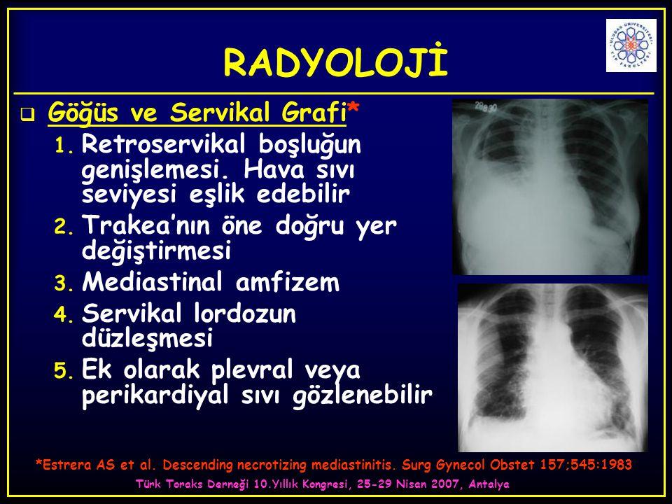 Türk Toraks Derneği 10.Yıllık Kongresi, 25-29 Nisan 2007, Antalya RADYOLOJİ  Göğüs ve Servikal Grafi* 1. Retroservikal boşluğun genişlemesi. Hava sıv