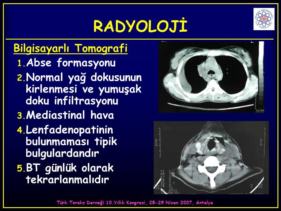 Türk Toraks Derneği 10.Yıllık Kongresi, 25-29 Nisan 2007, Antalya RADYOLOJİ Bilgisayarlı Tomografi 1. Abse formasyonu 2. Normal yağ dokusunun kirlenme
