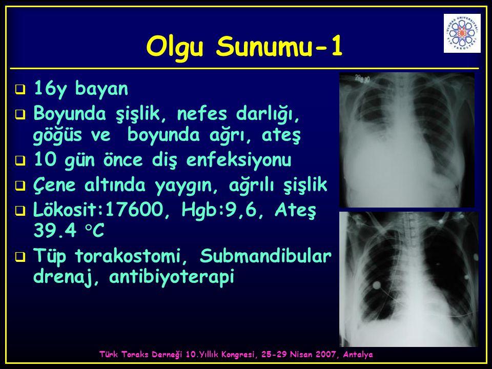 Türk Toraks Derneği 10.Yıllık Kongresi, 25-29 Nisan 2007, Antalya Olgu Sunumu-1  16y bayan  Boyunda şişlik, nefes darlığı, göğüs ve boyunda ağrı, ateş  10 gün önce diş enfeksiyonu  Çene altında yaygın, ağrılı şişlik  Lökosit:17600, Hgb:9,6, Ateş 39.4 °C  Tüp torakostomi, Submandibular drenaj, antibiyoterapi