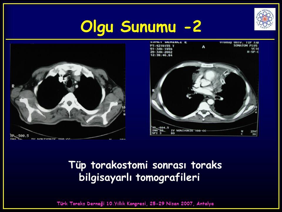 Türk Toraks Derneği 10.Yıllık Kongresi, 25-29 Nisan 2007, Antalya Tüp torakostomi sonrası toraks bilgisayarlı tomografileri Olgu Sunumu -2