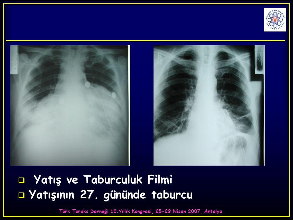 Türk Toraks Derneği 10.Yıllık Kongresi, 25-29 Nisan 2007, Antalya  Yatış ve Taburculuk Filmi  Yatışının 27.