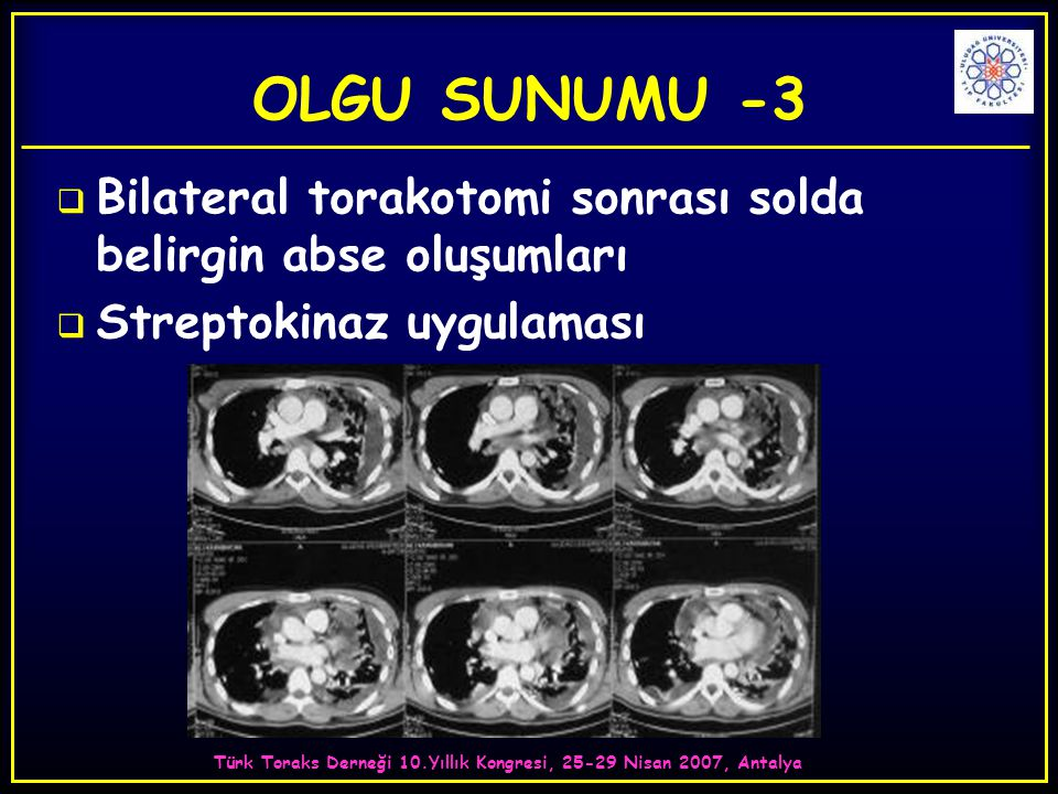Türk Toraks Derneği 10.Yıllık Kongresi, 25-29 Nisan 2007, Antalya  Bilateral torakotomi sonrası solda belirgin abse oluşumları  Streptokinaz uygulam