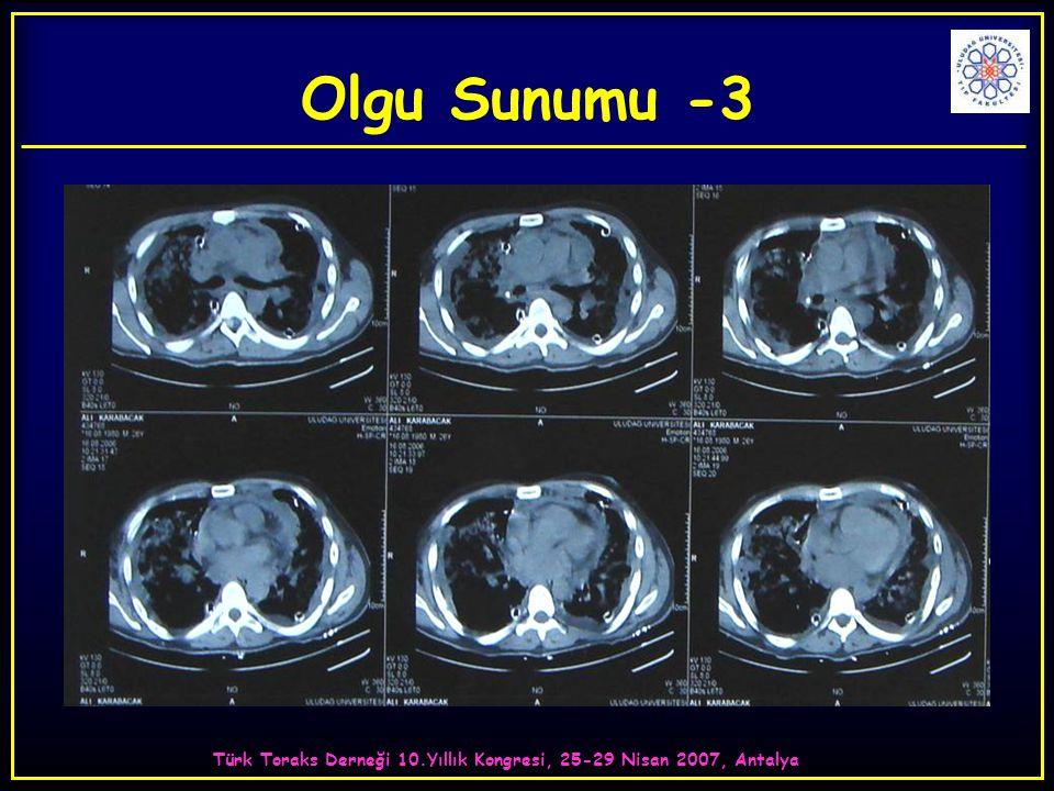 Türk Toraks Derneği 10.Yıllık Kongresi, 25-29 Nisan 2007, Antalya Olgu Sunumu -3