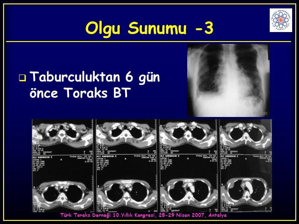 Türk Toraks Derneği 10.Yıllık Kongresi, 25-29 Nisan 2007, Antalya  Taburculuktan 6 gün önce Toraks BT Olgu Sunumu -3