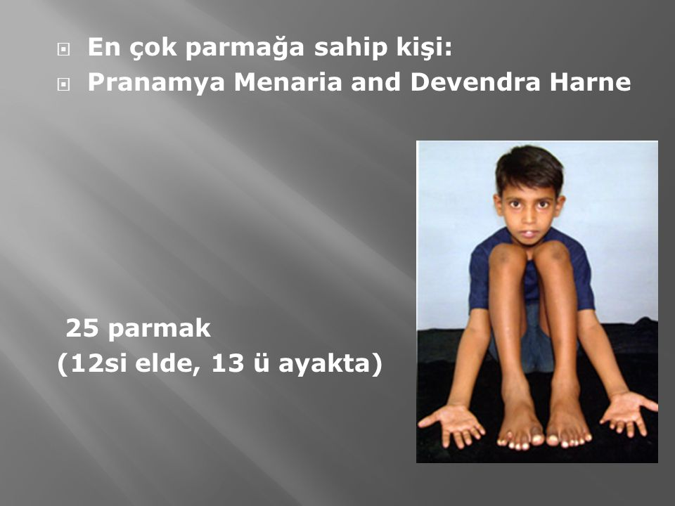  En çok parmağa sahip kişi:  Pranamya Menaria and Devendra Harne 25 parmak (12si elde, 13 ü ayakta)