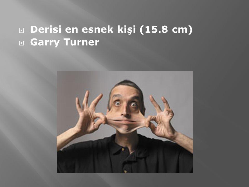  Derisi en esnek kişi (15.8 cm)  Garry Turner