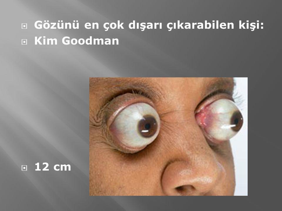  Gözünü en çok dışarı çıkarabilen kişi:  Kim Goodman  12 cm