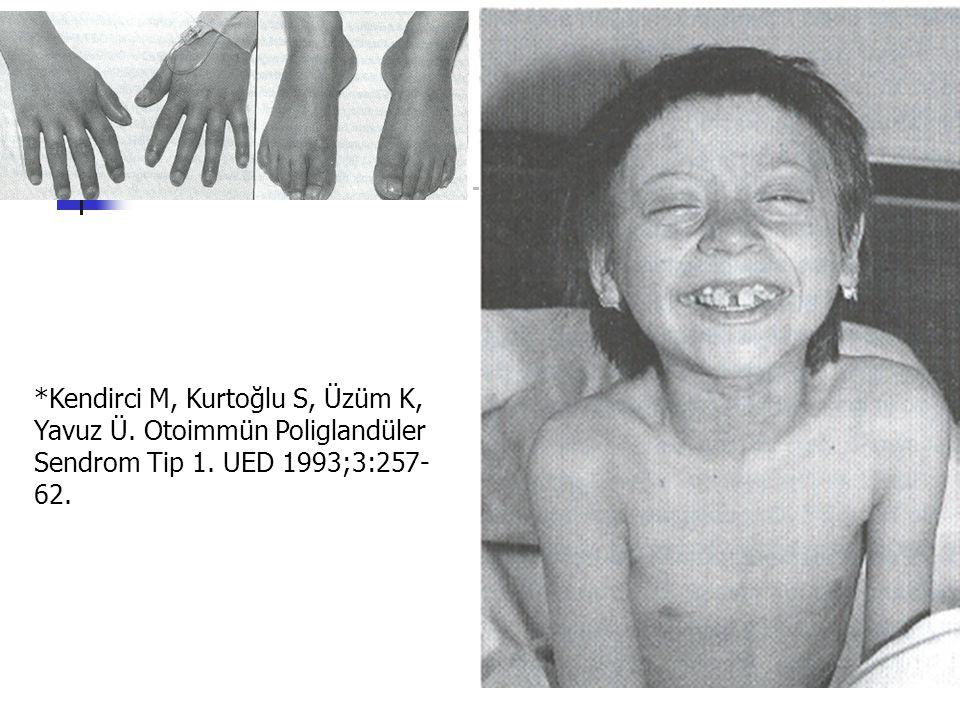 *Kendirci M, Kurtoğlu S, Üzüm K, Yavuz Ü. Otoimmün Poliglandüler Sendrom Tip 1. UED 1993;3:257- 62.