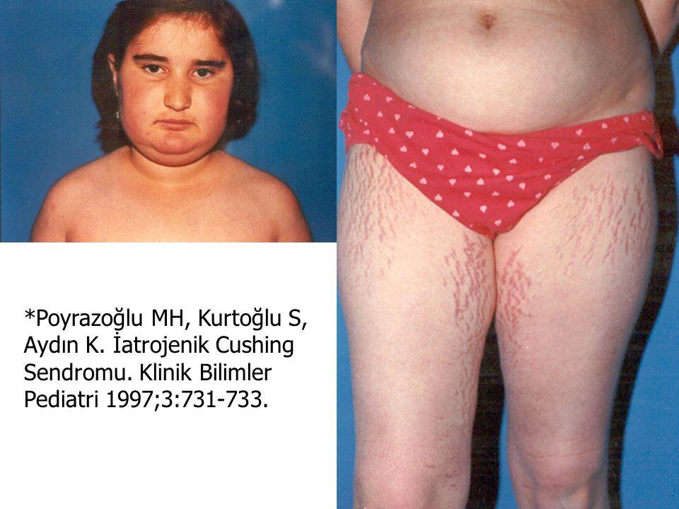 *Poyrazoğlu MH, Kurtoğlu S, Aydın K. İatrojenik Cushing Sendromu. Klinik Bilimler Pediatri 1997;3:731-733.