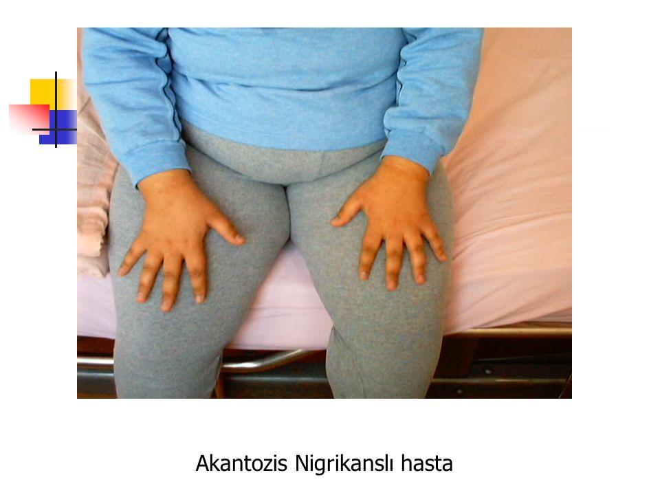Akantozis Nigrikanslı hasta