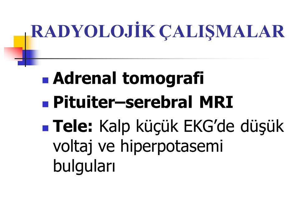 RADYOLOJİK ÇALIŞMALAR Adrenal tomografi Pituiter–serebral MRI Tele: Kalp küçük EKG'de düşük voltaj ve hiperpotasemi bulguları