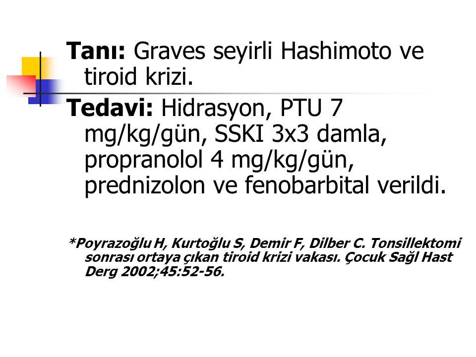 Tanı: Graves seyirli Hashimoto ve tiroid krizi. Tedavi: Hidrasyon, PTU 7 mg/kg/gün, SSKI 3x3 damla, propranolol 4 mg/kg/gün, prednizolon ve fenobarbit