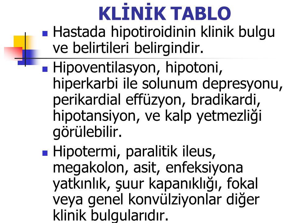 KLİNİK TABLO Hastada hipotiroidinin klinik bulgu ve belirtileri belirgindir. Hipoventilasyon, hipotoni, hiperkarbi ile solunum depresyonu, perikardial