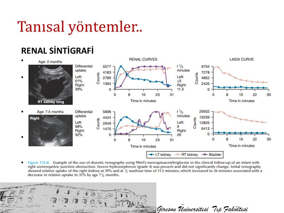 Tanısal yöntemler.. Giresun Üniversitesi Tıp Fakültesi RENAL SİNTİGRAFİ Bb ekskresyon dinamiği ve fonksiyonel rezervini değerlendirmede faydalı MAG3 (