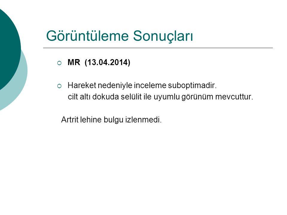 Görüntüleme Sonuçları  MR (13.04.2014)  Hareket nedeniyle inceleme suboptimadir. cilt altı dokuda selülit ile uyumlu görünüm mevcuttur. Artrit lehin