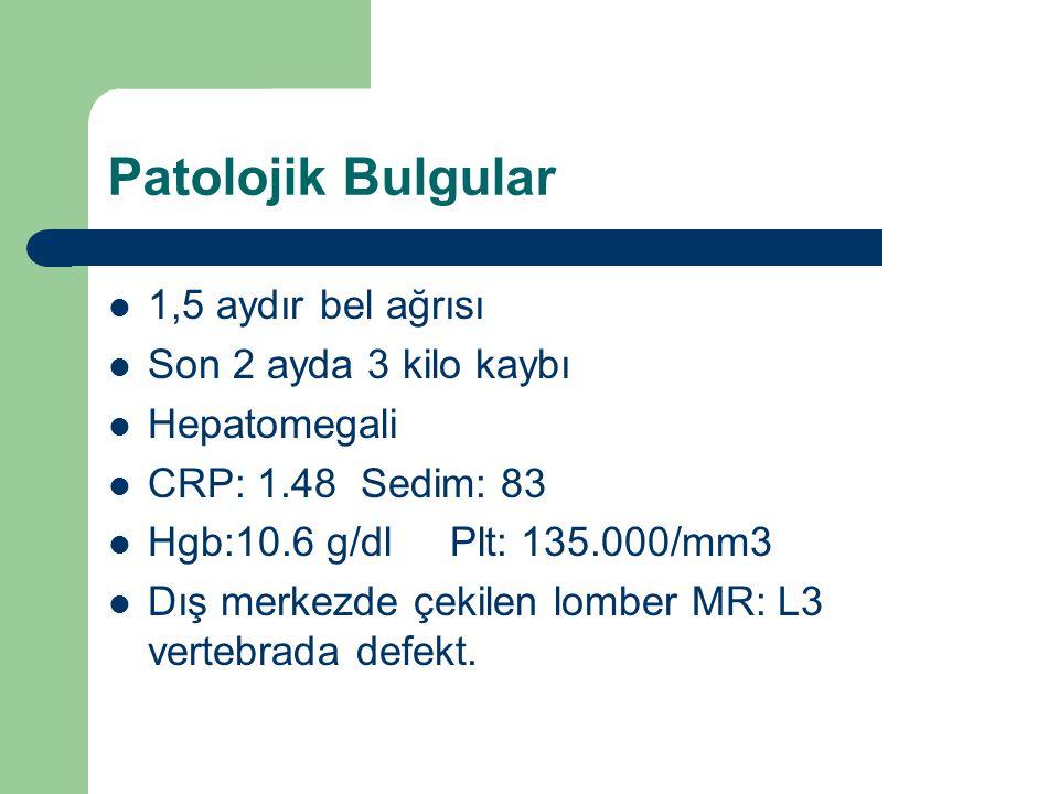 Patolojik Bulgular 1,5 aydır bel ağrısı Son 2 ayda 3 kilo kaybı Hepatomegali CRP: 1.48 Sedim: 83 Hgb:10.6 g/dl Plt: 135.000/mm3 Dış merkezde çekilen l