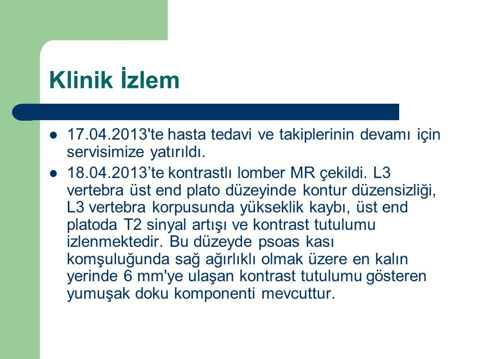 Klinik İzlem 17.04.2013'te hasta tedavi ve takiplerinin devamı için servisimize yatırıldı. 18.04.2013'te kontrastlı lomber MR çekildi. L3 vertebra üst