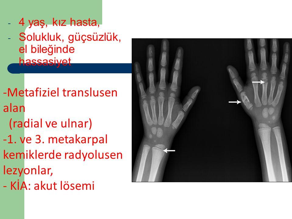 Vaka 2 - 4 yaş, kız hasta, - Solukluk, güçsüzlük, el bileğinde hassasiyet -Metafiziel translusen alan (radial ve ulnar) -1. ve 3. metakarpal kemiklerd