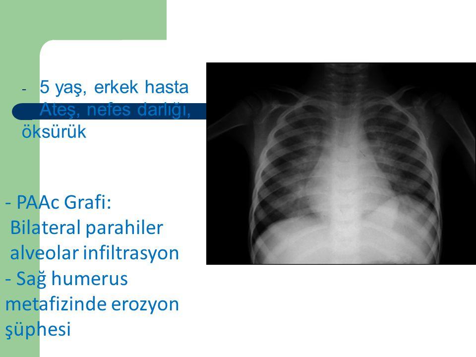 Vaka 5 - 5 yaş, erkek hasta - Ateş, nefes darlığı, öksürük - PAAc Grafi: Bilateral parahiler alveolar infiltrasyon - Sağ humerus metafizinde erozyon ş