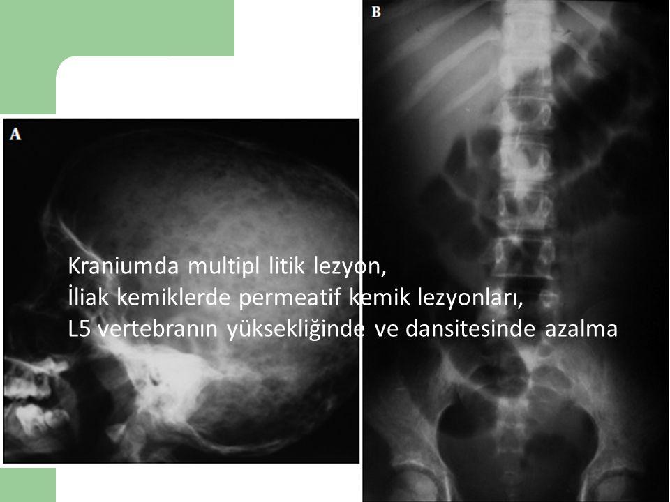 Vaka 9 Kraniumda multipl litik lezyon, İliak kemiklerde permeatif kemik lezyonları, L5 vertebranın yüksekliğinde ve dansitesinde azalma