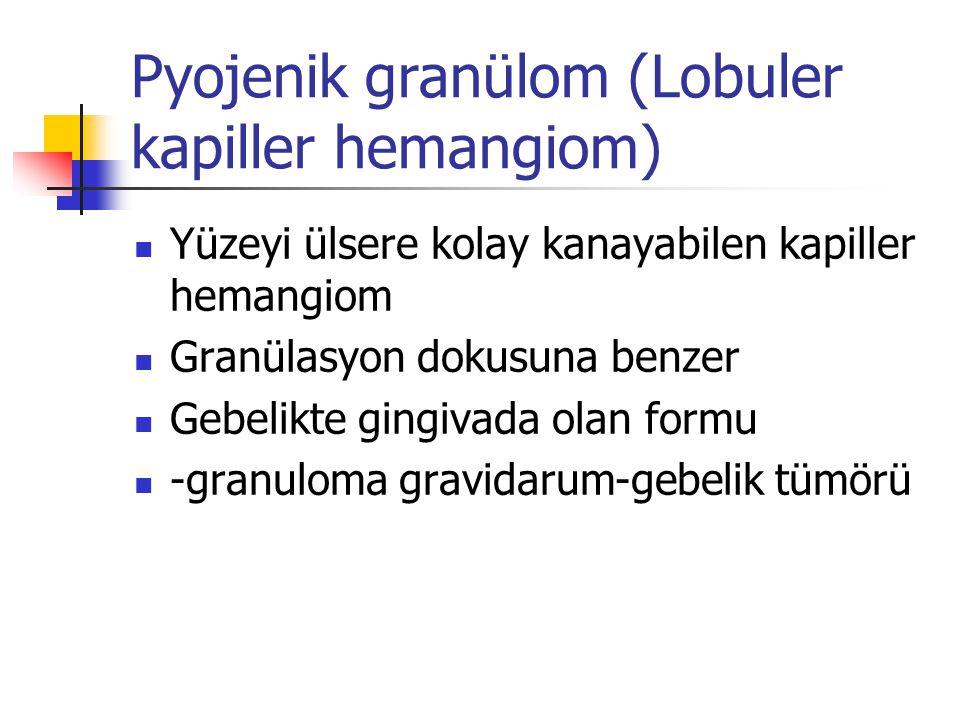 Pyojenik granülom (Lobuler kapiller hemangiom) Yüzeyi ülsere kolay kanayabilen kapiller hemangiom Granülasyon dokusuna benzer Gebelikte gingivada olan