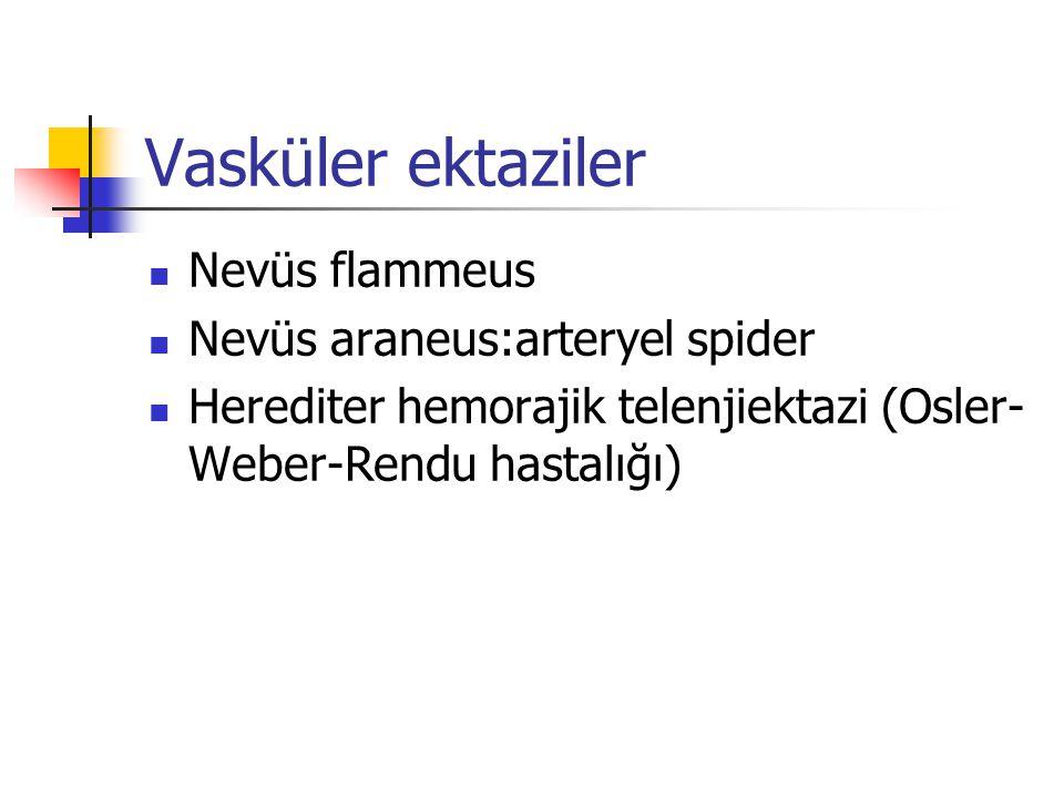 Vasküler ektaziler Nevüs flammeus Nevüs araneus:arteryel spider Herediter hemorajik telenjiektazi (Osler- Weber-Rendu hastalığı)