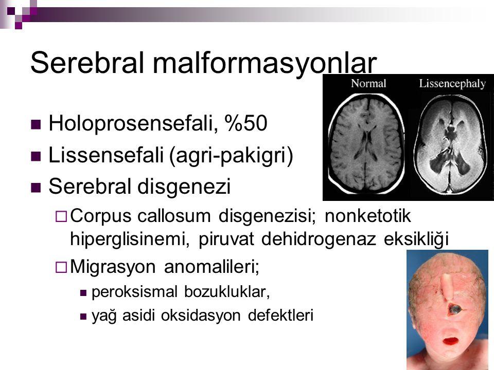 Serebral malformasyonlar Holoprosensefali, %50 Lissensefali (agri-pakigri) Serebral disgenezi  Corpus callosum disgenezisi; nonketotik hiperglisinemi