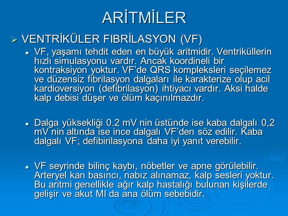ARİTMİLER  VENTRİKÜLER FIBRİLASYON (VF) VF, yaşamı tehdit eden en büyük aritmidir. Ventriküllerin hızlı simulasyonu vardır. Ancak koordineli bir kont