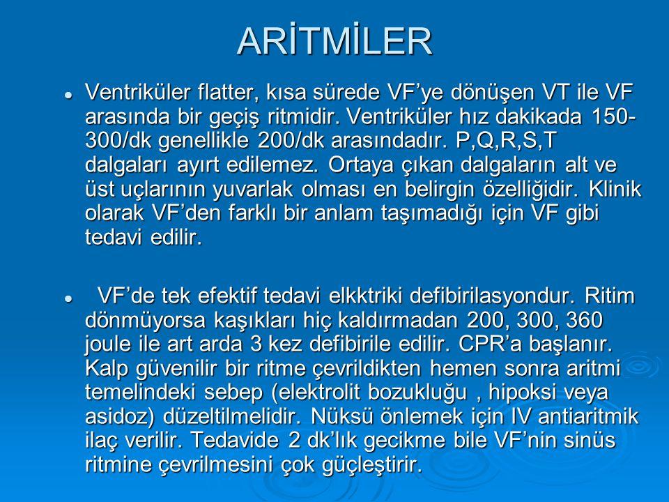 ARİTMİLER Ventriküler flatter, kısa sürede VF'ye dönüşen VT ile VF arasında bir geçiş ritmidir. Ventriküler hız dakikada 150- 300/dk genellikle 200/dk