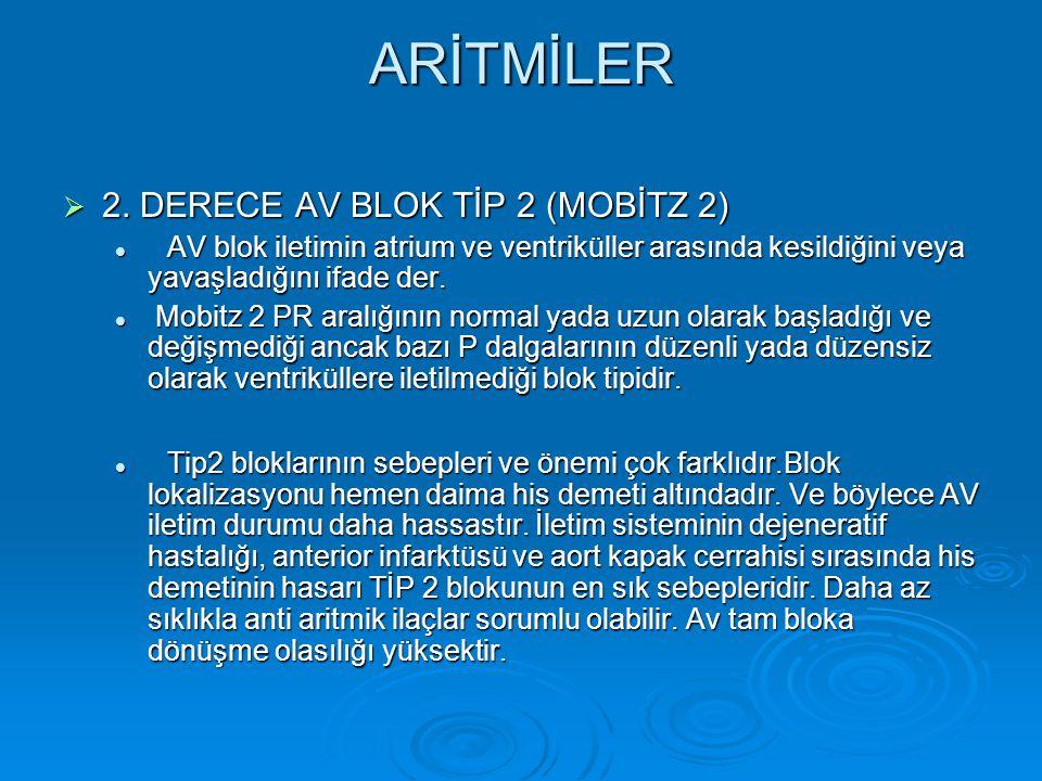 ARİTMİLER  2. DERECE AV BLOK TİP 2 (MOBİTZ 2) AV blok iletimin atrium ve ventriküller arasında kesildiğini veya yavaşladığını ifade der. AV blok ilet