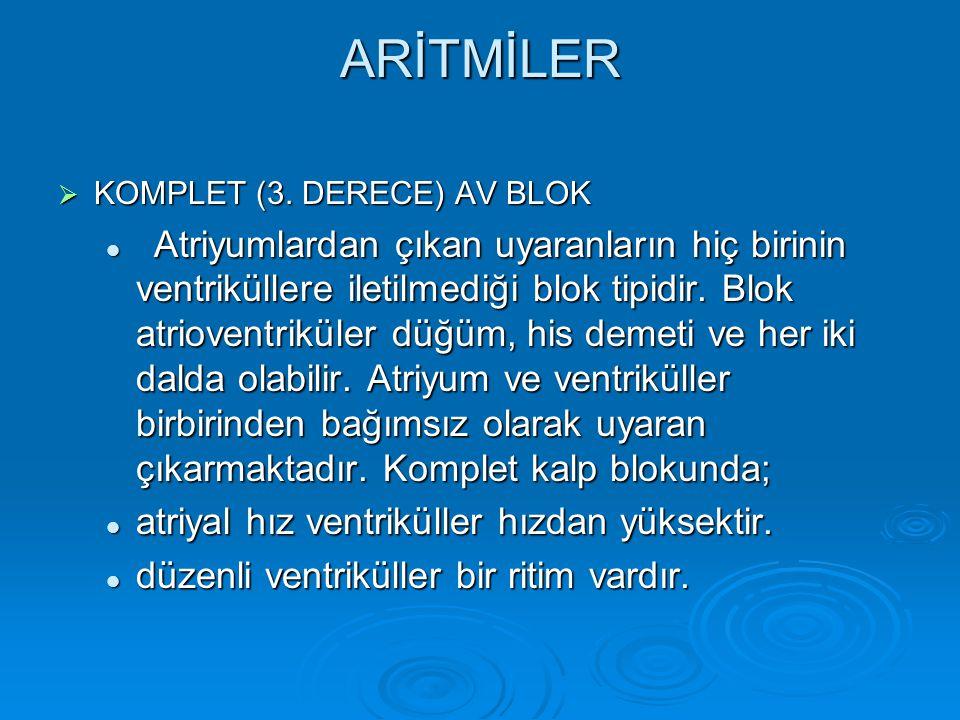 ARİTMİLER  KOMPLET (3. DERECE) AV BLOK Atriyumlardan çıkan uyaranların hiç birinin ventriküllere iletilmediği blok tipidir. Blok atrioventriküler düğ