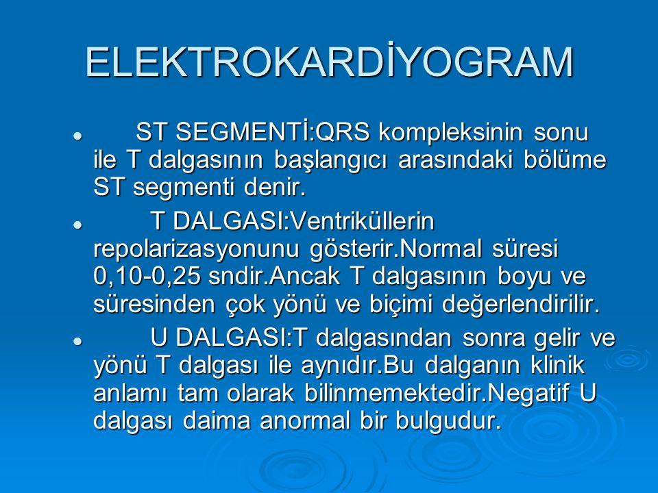 ELEKTROKARDİYOGRAM ST SEGMENTİ:QRS kompleksinin sonu ile T dalgasının başlangıcı arasındaki bölüme ST segmenti denir. ST SEGMENTİ:QRS kompleksinin son