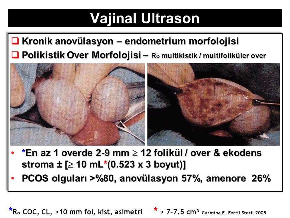 Vajinal Ultrason  Kronik anovülasyon – endometrium morfolojisi  Polikistik Over Morfolojisi – R o multikistik / multifoliküler over *En az 1 overde