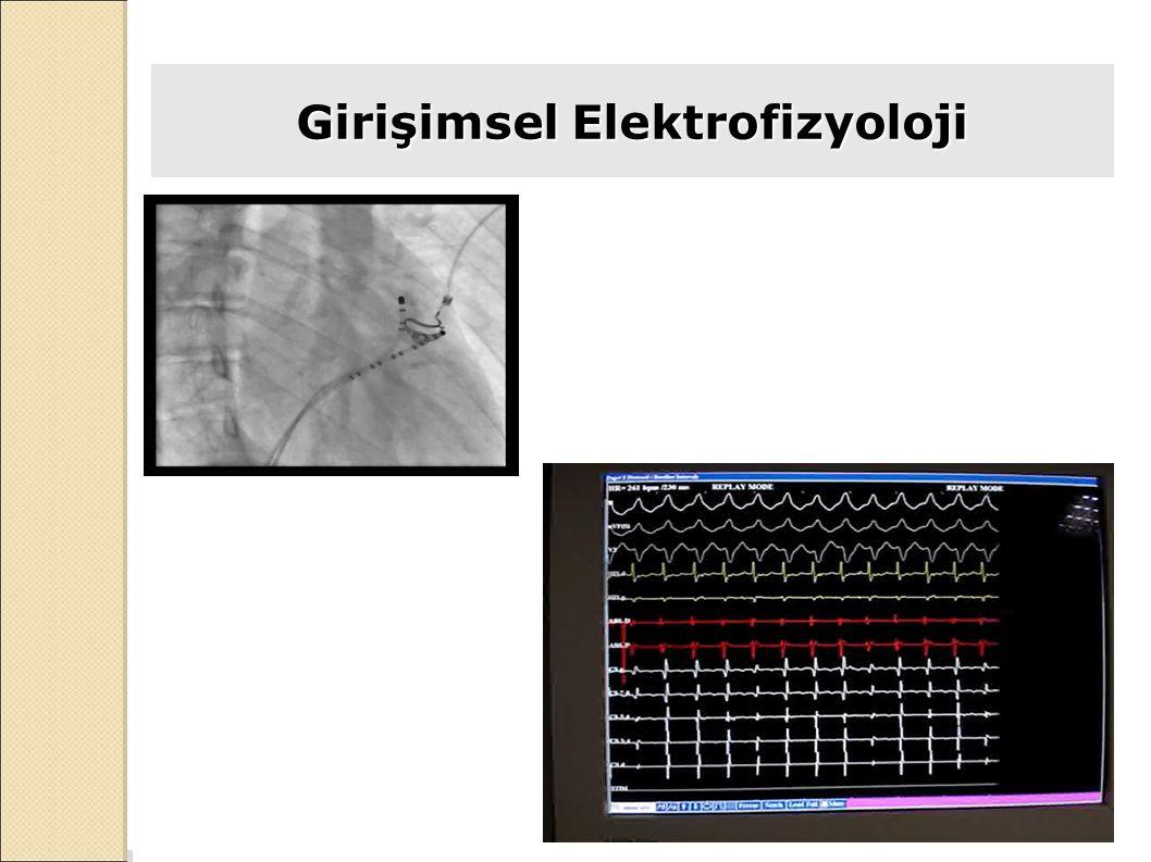 Girişimsel Elektrofizyoloji