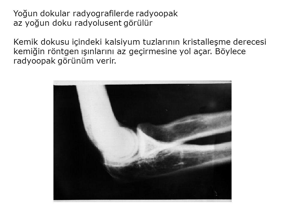 Yoğun dokular radyografilerde radyoopak az yoğun doku radyolusent görülür Kemik dokusu içindeki kalsiyum tuzlarının kristalleşme derecesi kemiğin rönt