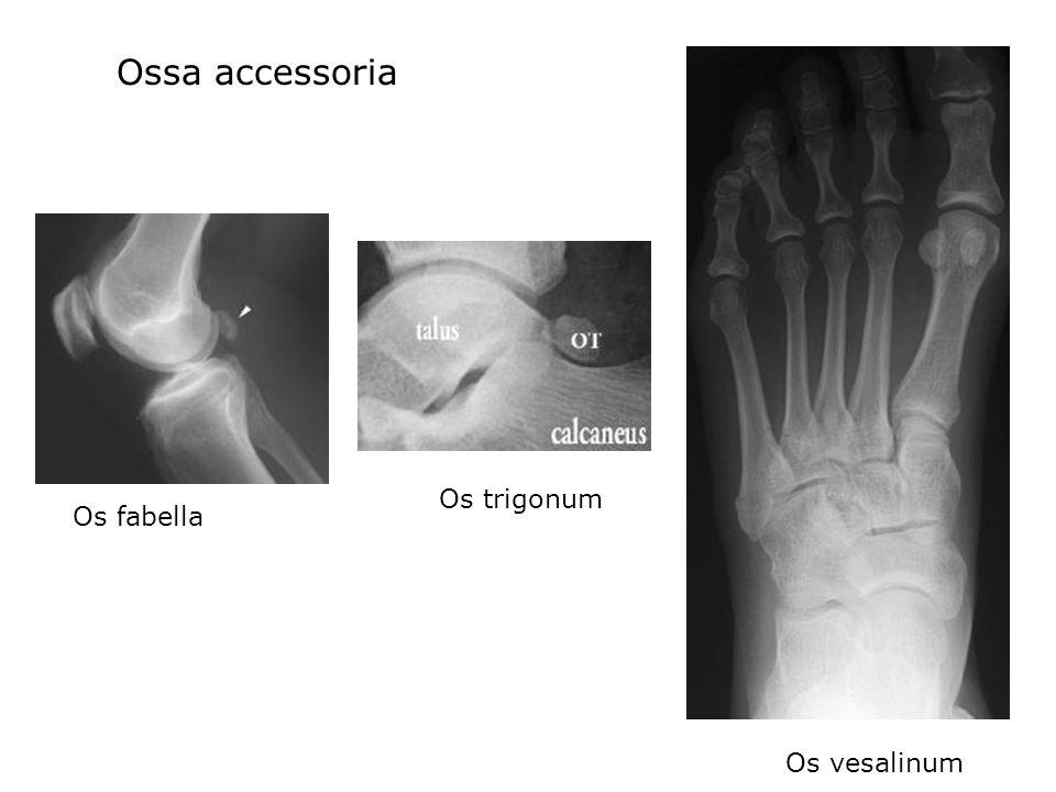 Os fabella Ossa accessoria Os trigonum Os vesalinum