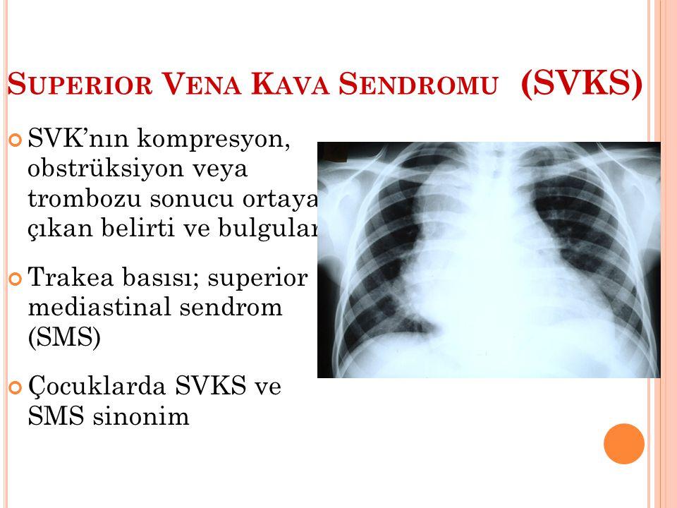 S UPERIOR V ENA K AVA S ENDROMU (SVKS) SVK'nın kompresyon, obstrüksiyon veya trombozu sonucu ortaya çıkan belirti ve bulguları Trakea basısı; superior