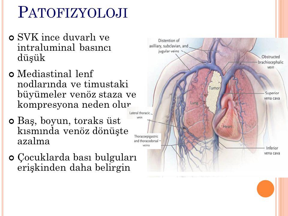 P ATOFIZYOLOJI SVK ince duvarlı ve intraluminal basıncı düşük Mediastinal lenf nodlarında ve timustaki büyümeler venöz staza ve kompresyona neden olur Baş, boyun, toraks üst kısmında venöz dönüşte azalma Çocuklarda bası bulguları erişkinden daha belirgin