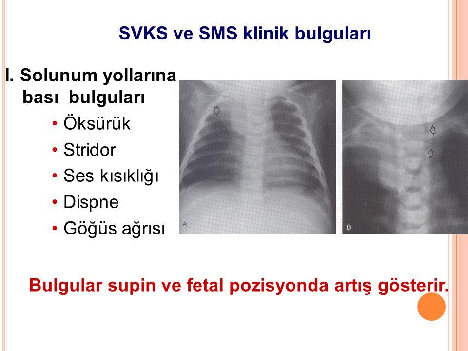 SVKS ve SMS klinik bulguları I. Solunum yollarına bası bulguları Öksürük Stridor Ses kısıklığı Dispne Göğüs ağrısı Bulgular supin ve fetal pozisyonda