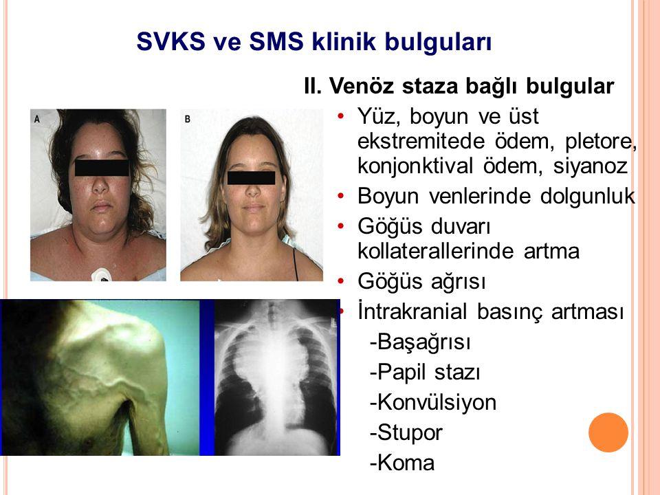 SVKS ve SMS klinik bulguları II. Venöz staza bağlı bulgular Yüz, boyun ve üst ekstremitede ödem, pletore, konjonktival ödem, siyanoz Boyun venlerinde