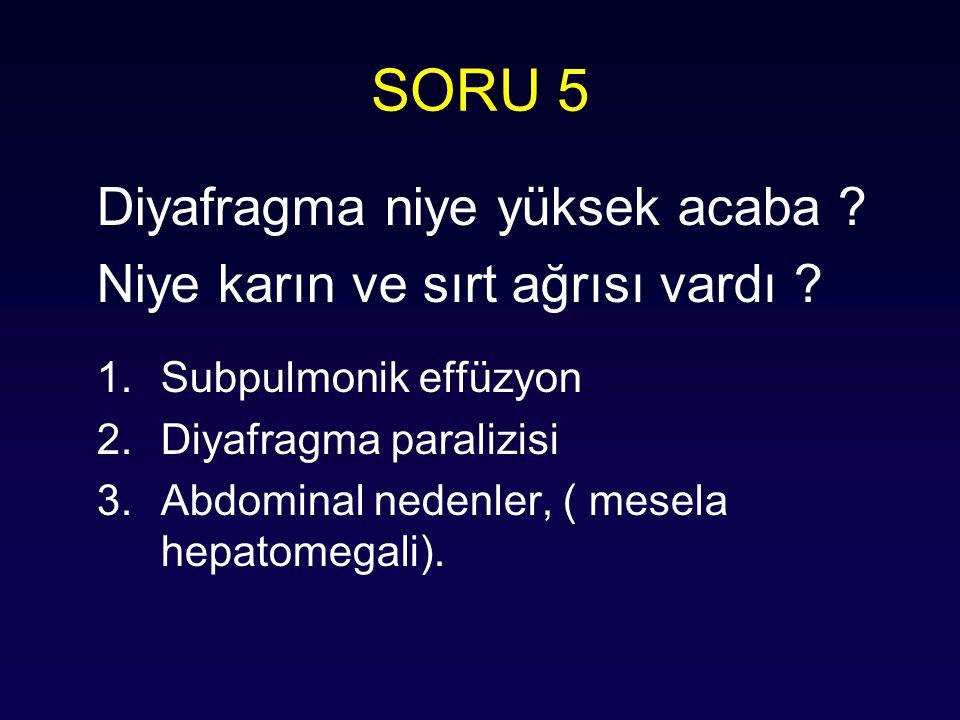 SORU 5 Diyafragma niye yüksek acaba ? Niye karın ve sırt ağrısı vardı ? 1.Subpulmonik effüzyon 2.Diyafragma paralizisi 3.Abdominal nedenler, ( mesela