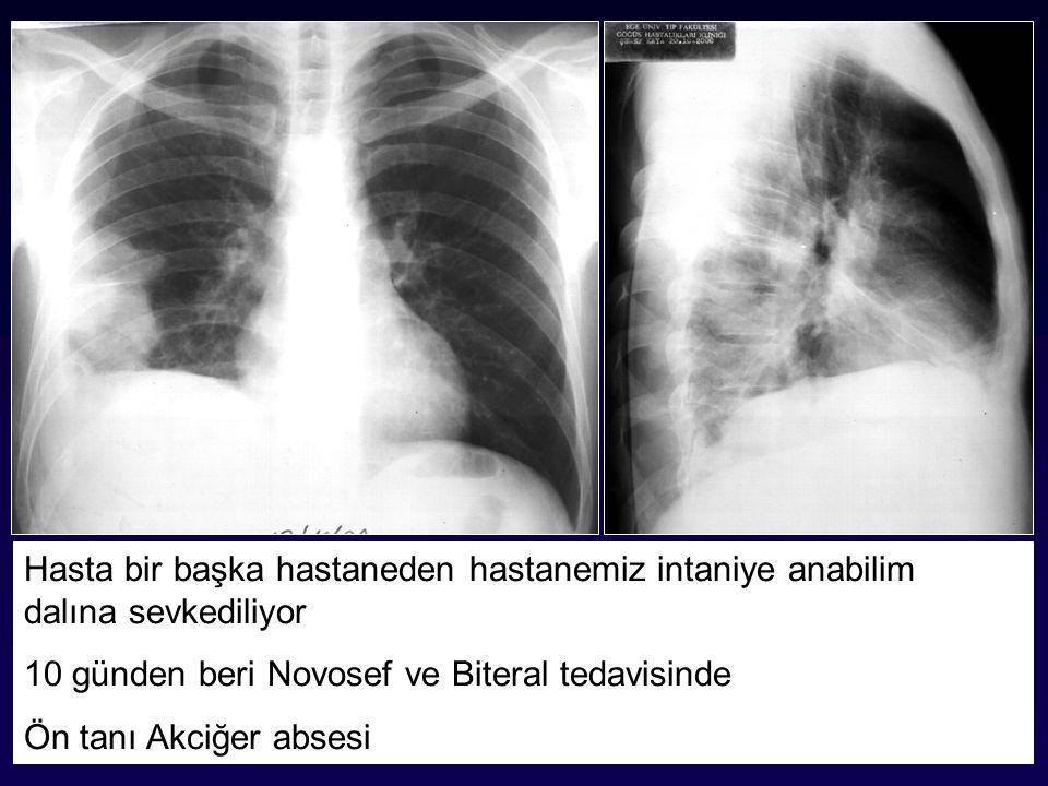 Hasta bir başka hastaneden hastanemiz intaniye anabilim dalına sevkediliyor 10 günden beri Novosef ve Biteral tedavisinde Ön tanı Akciğer absesi