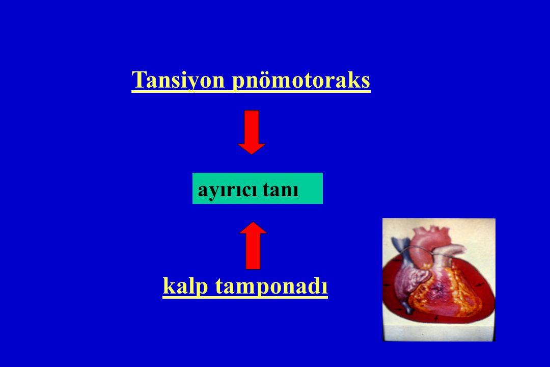 Tansiyon pnömotoraks kalp tamponadı ayırıcı tanı