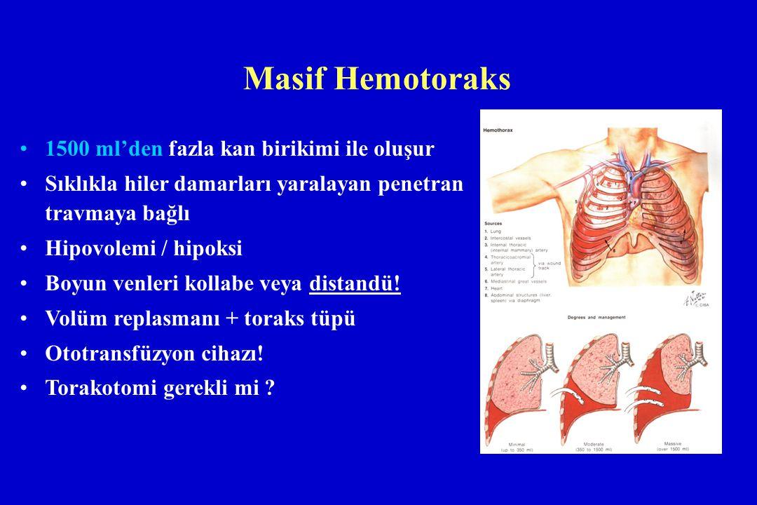 Masif Hemotoraks 1500 ml'den fazla kan birikimi ile oluşur Sıklıkla hiler damarları yaralayan penetran travmaya bağlı Hipovolemi / hipoksi Boyun venle