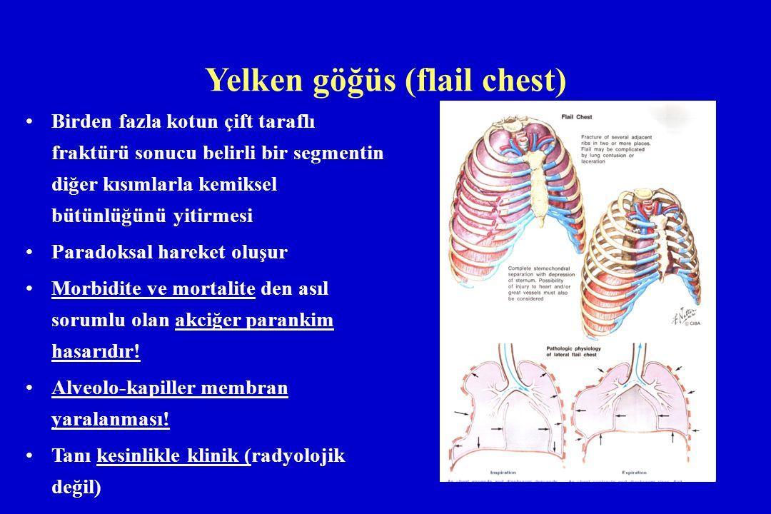 Yelken göğüs (flail chest) Birden fazla kotun çift taraflı fraktürü sonucu belirli bir segmentin diğer kısımlarla kemiksel bütünlüğünü yitirmesi Parad