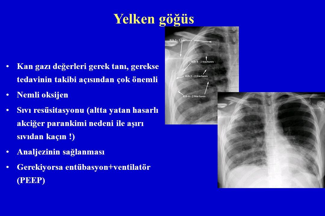 Yelken göğüs Kan gazı değerleri gerek tanı, gerekse tedavinin takibi açısından çok önemli Nemli oksijen Sıvı resüsitasyonu (altta yatan hasarlı akciğe