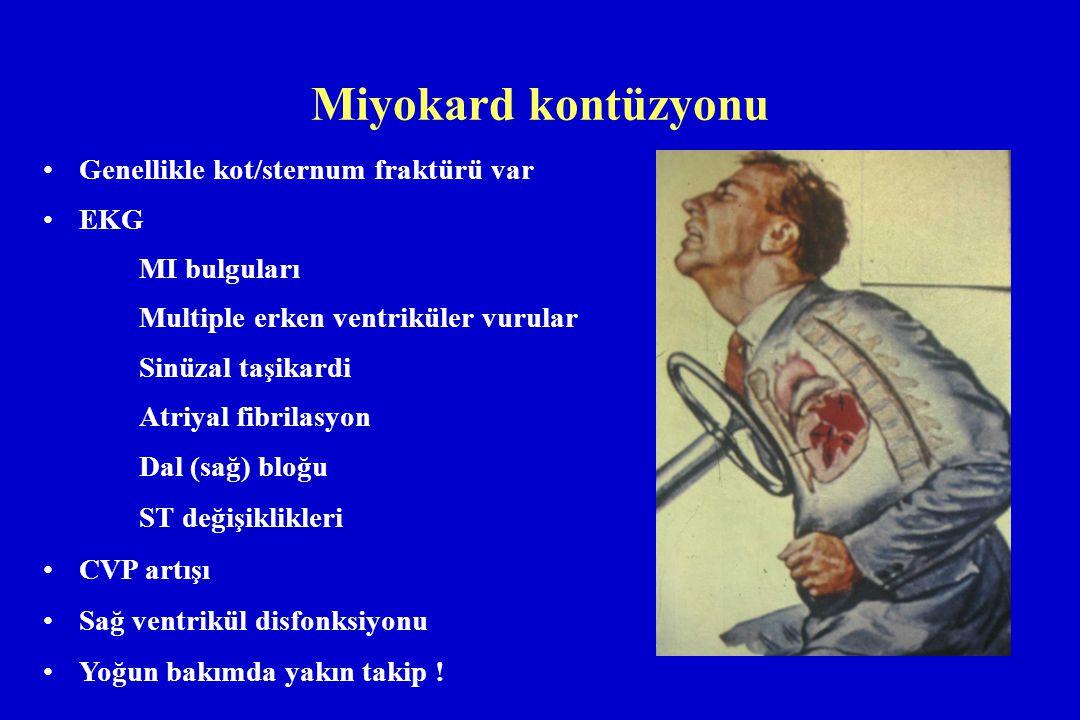 Miyokard kontüzyonu Genellikle kot/sternum fraktürü var EKG MI bulguları Multiple erken ventriküler vurular Sinüzal taşikardi Atriyal fibrilasyon Dal