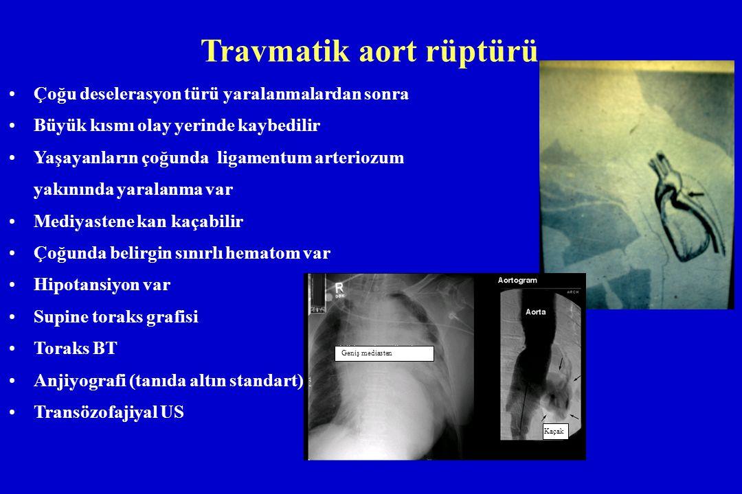 Travmatik aort rüptürü Çoğu deselerasyon türü yaralanmalardan sonra Büyük kısmı olay yerinde kaybedilir Yaşayanların çoğunda ligamentum arteriozum yak