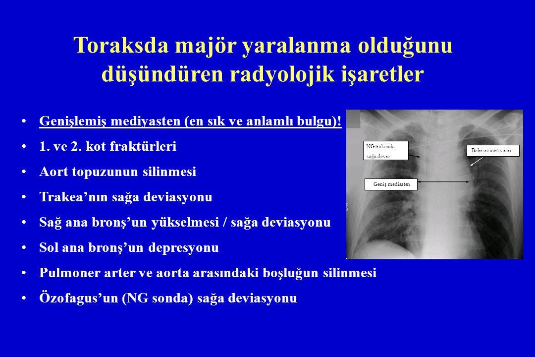 Toraksda majör yaralanma olduğunu düşündüren radyolojik işaretler Genişlemiş mediyasten (en sık ve anlamlı bulgu)! 1. ve 2. kot fraktürleri Aort topuz
